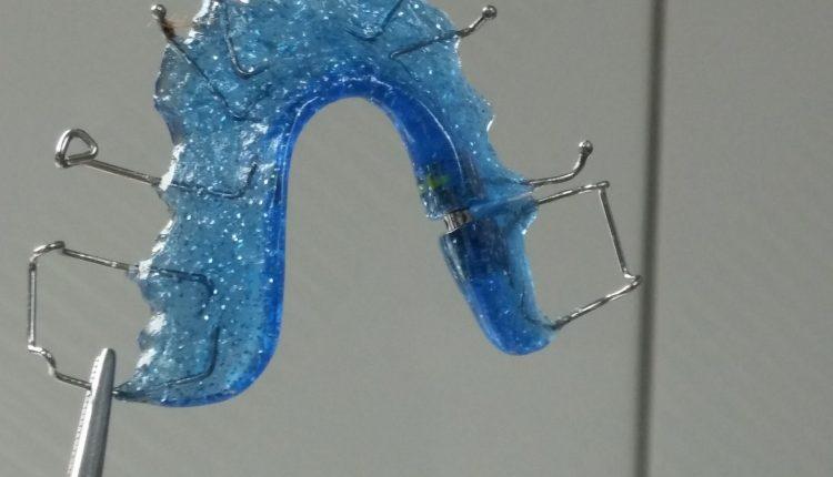 aparatul-dentar