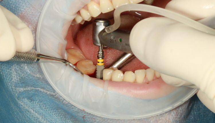 implant-dentar-in-Bucuresti
